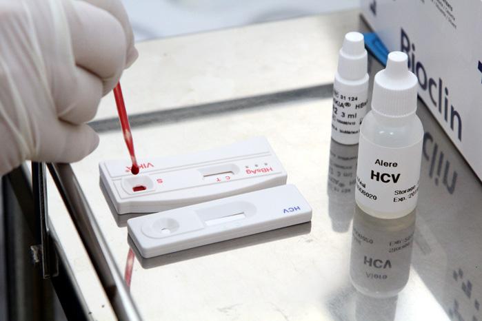 hepatite 2