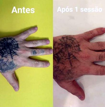 Hell.tatoo.remoção